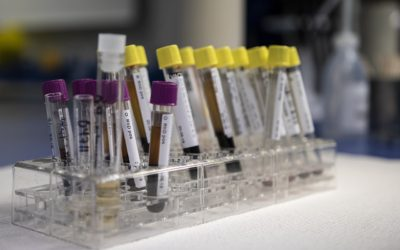 Prostate cancer: a highly accurate blood test could reduce invasive biopsies